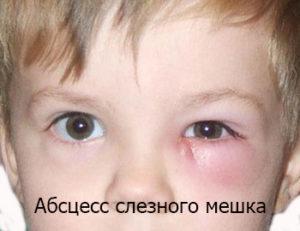 У ребенка опух глаз