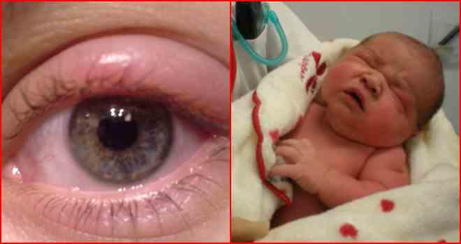глаз новорожденный