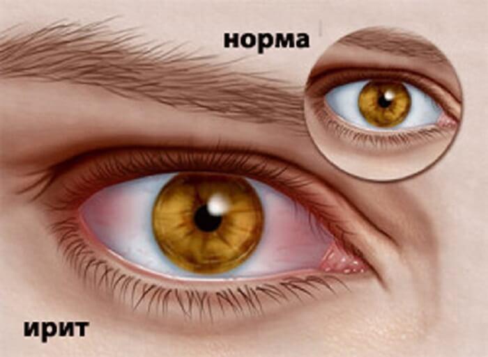 Ирит глаза