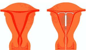 Сколько дней идет первая менструация у подростков и после беременности