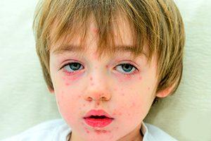 Фото Крапивницы на лице у ребенка
