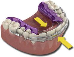 Такой метод помогает скорректировать небольшие погрешности зубного ряда