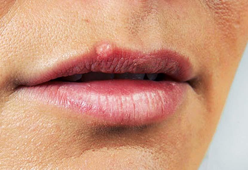 Фото бородавки на верхней губе