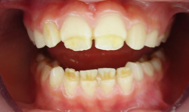 Опытный стоматолог рассказывает от причинах и методах профилактики гипоплазии зубов