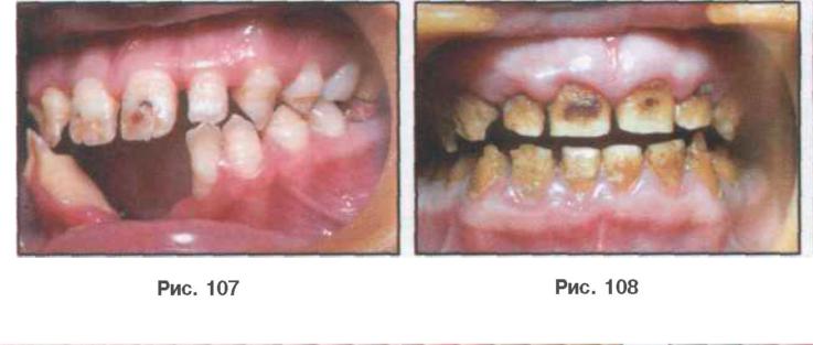 Классификация и клиника гипоплазии