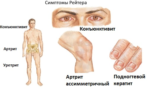 Синдром Рейтера у детей