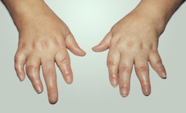 Вирусный реактивный артрит у детей