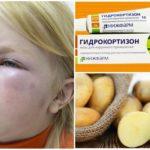 Последствия укуса мошки на лице