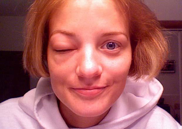 Если укусила мошка в глаз