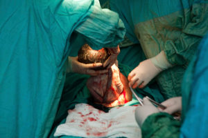 Хирургические роды