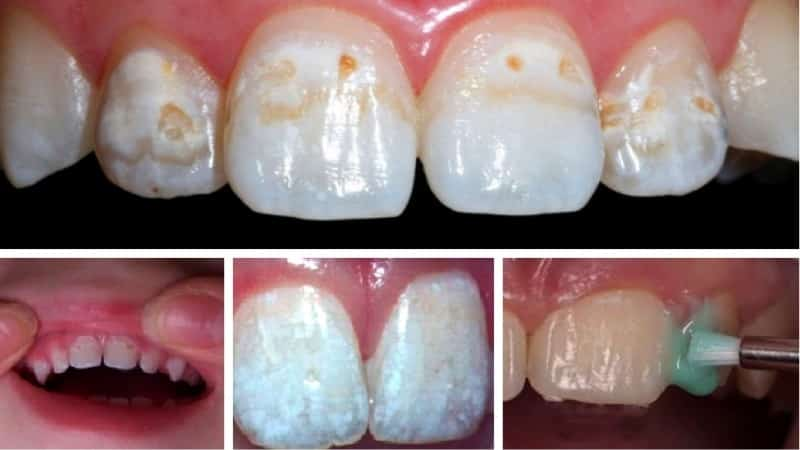 фторирование молочных зубов детям