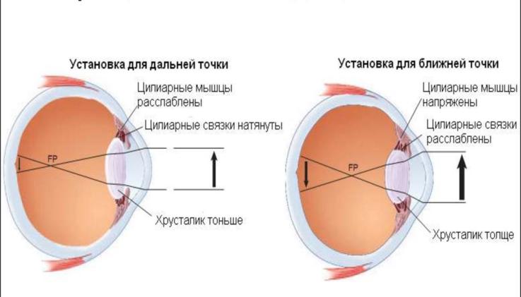 Напряжение зрения