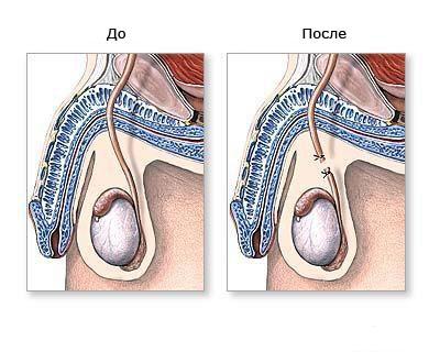 стерилизация мужчины плюсы и минусы