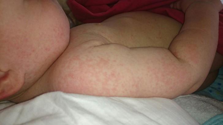 Сыпь у ребенка на ногах (ступнях, под коленками) в виде красных точек