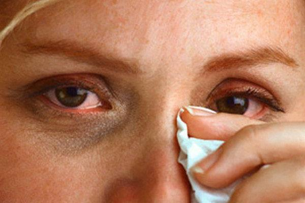 От чего помогает глазные капли Тобрекс: инструкция для детей