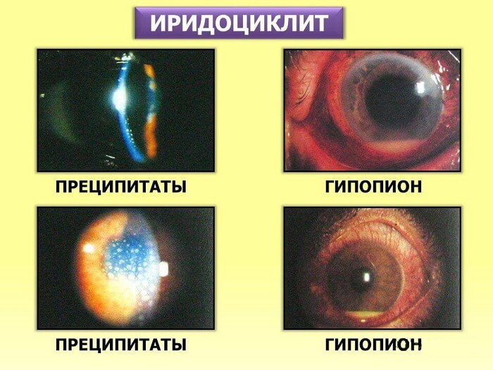 Виды иридоциклита
