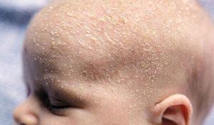 Шелушения кожных покровов у новорожденных