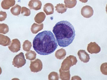 норма базофилов в крови
