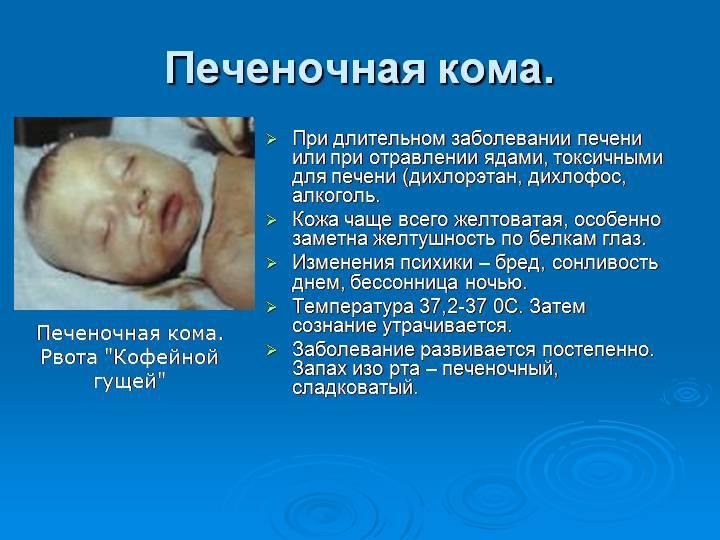 Симптомы печеночной комы