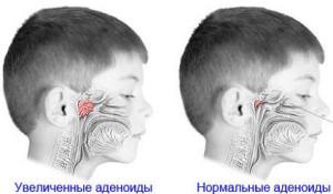 Нормальные и воспаленные аденоиды