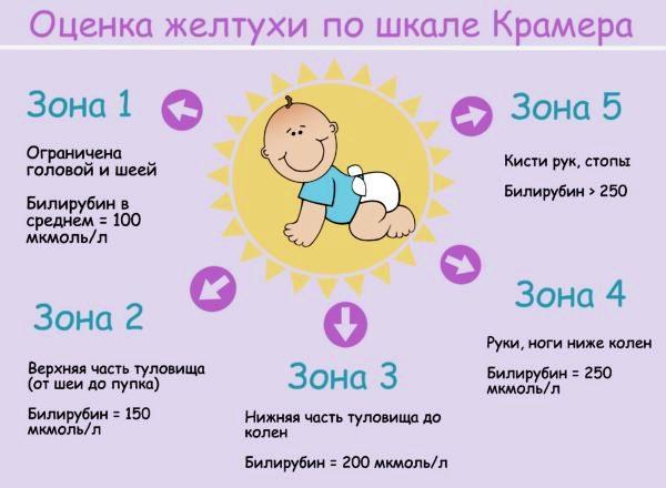 Оценка желтухи у ребенка
