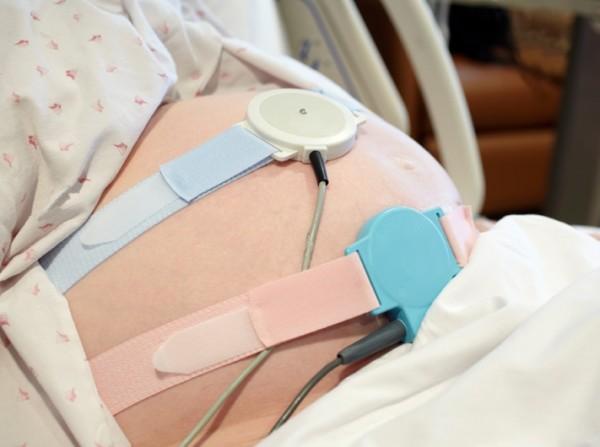 Устройство для кардиотокографии, зафиксированное на животе у беременной женщины