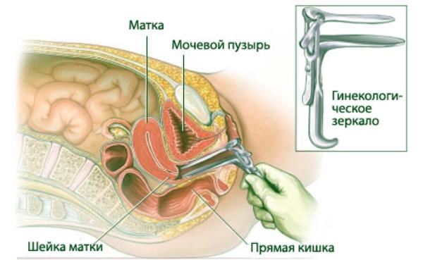 вагинальное исследование