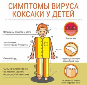 Симптомы вируса Коксаки у детей