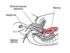 Схема выскабливания цервикального канала и полости матки