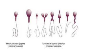 генетические поломки