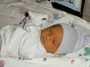 Желтушка у новорожденных фото