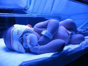 Лечение желтухи у новорожденных картинка