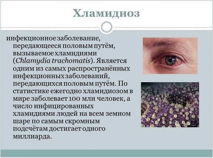 Хламидиоз глаза человека