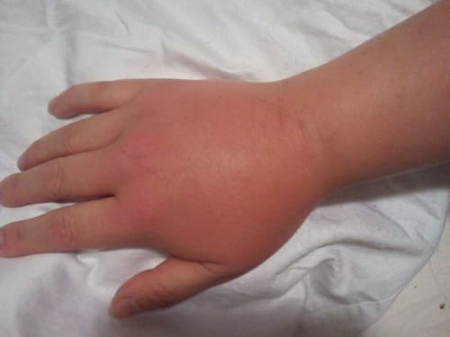 Ребенка укусила пчела за палец