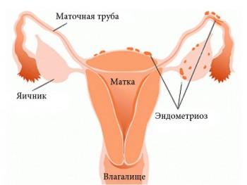 Применение Дюфастона при эндометриозе
