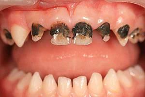 ФОТО: Серебрение молочных зубов у детей. Зубы почернели, но кариес не остановил своего развития.