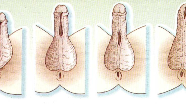 Патологии полового члена