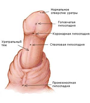 Различают несколько видов гипоспадии