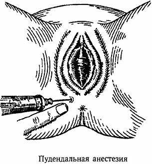 пудендальная анестезия