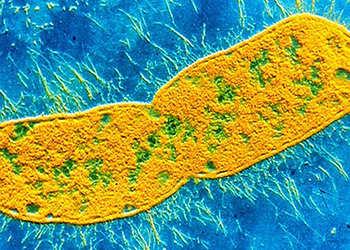 клебсиелла под микроскопом