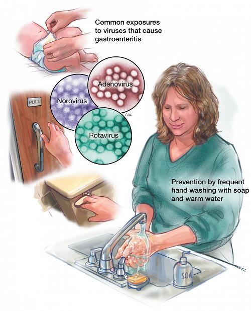 Профилактика ротавирусной инфекции