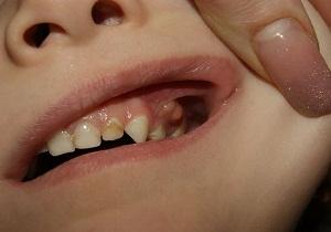 Периостит в области коренных молочных зубов