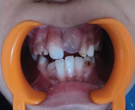 На фото ― киста прорезывания в области центрального верхнего резца