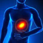 Изжога: психосоматика – когда причина болей желудка в голове