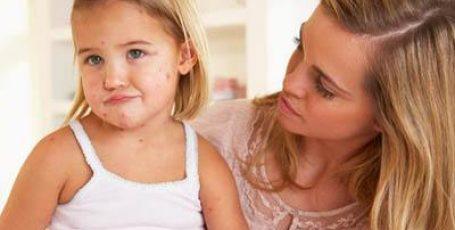 Ветрянка у детей — как начинается, симптомы, как выглядит на фото, инкубационный период и лечение ветрянки